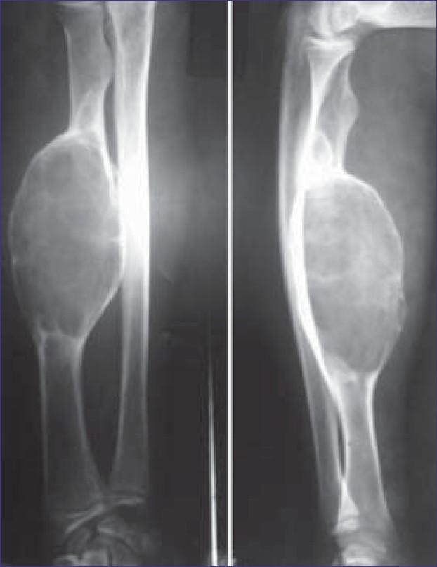 Osteoblastoma of radius Datta S, Ghosh S, Chaudhuri A ...