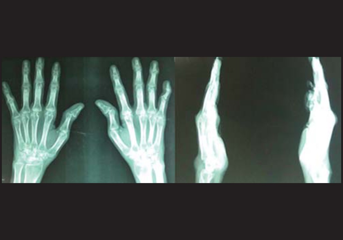 Figure 3: X – Ray shows:- subluxation of mcp joint with arthritic changes more on rt side with wrist joint changes