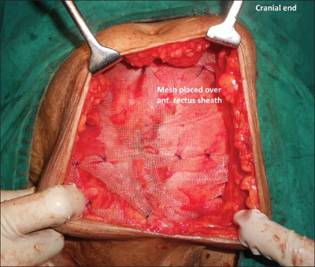 Ventral hernia surgery complications