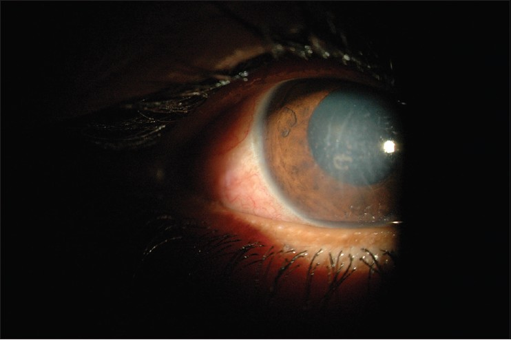 An Interesting Case Of Herpes Zoster Ophthalmicus Mishra A