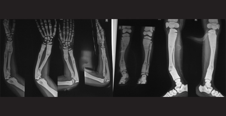 Image result for osteopetrosis xray