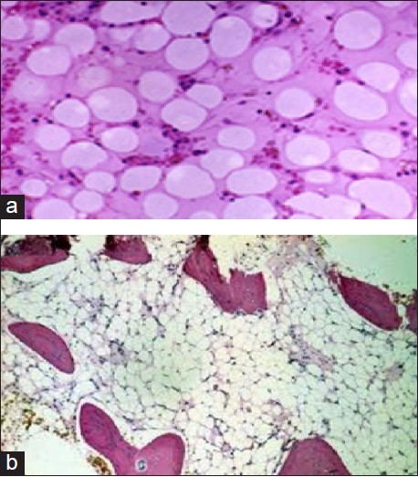 articles about aplastic anemia