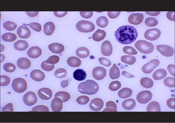 aplastic anemia case study Incidence the incidence reported by montané et al of 234/million1 is similar to the rate of 20 for the international agranulocytosis and aplastic anemia study in.