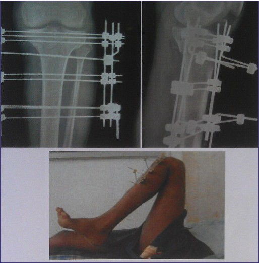Figure 12: Post-operative clinical and radiograph after 12 weeks