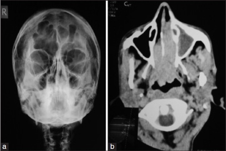 Figure 2: X-ray of the para nasal sinuses showing increased soft-tissue density and mucosal thickening in left maxillary antrum (a) and contrast enhanced computed tomography of the para nasal sinuses showing increased soft-tissue density with contrast enhancement in the left maxillary antrum with extension through left osteomeatal foramen to the left nasal cavity along with further extension through choana to nasopharynx resulting in partial obliteration of the nasopharyngeal airway (b)