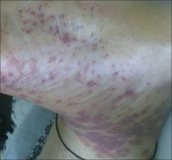 Figure 3: Purplish, erythematous, palpable petechial to confluent rash involving Bilateral lower legs, feet, soles.
