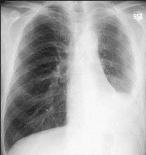 Figure 1: Chest X-ray showing left-sided pleural effusion