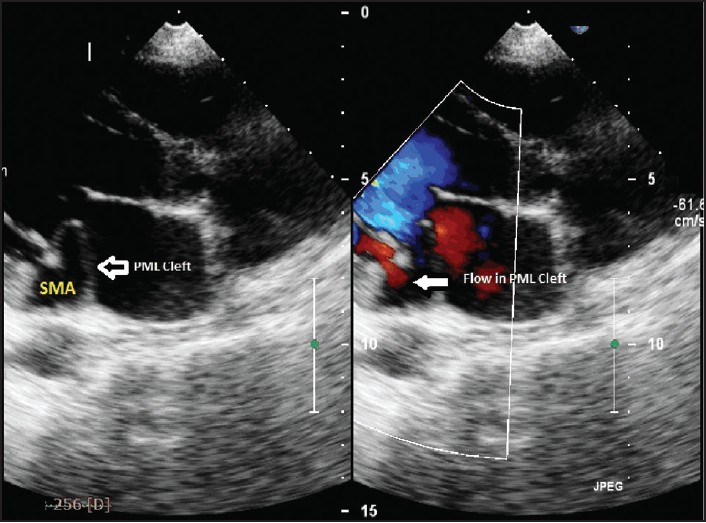 Figure 3: Trans thoracic color Doppler showing to and fro movement of blood in SMA