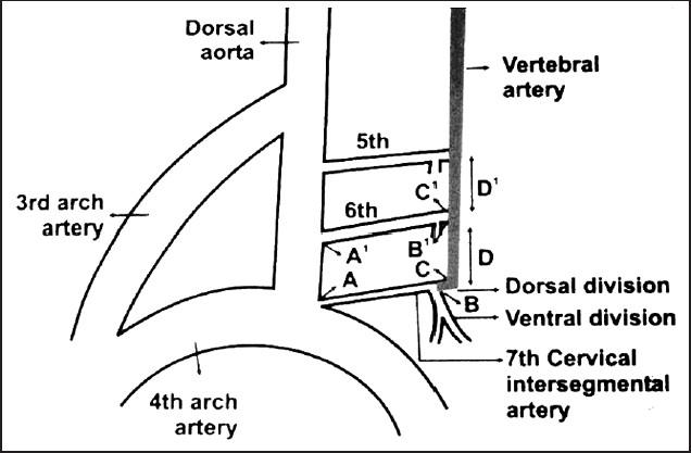 Variation In The Origin Of Left Vertebral Artery A Case Report