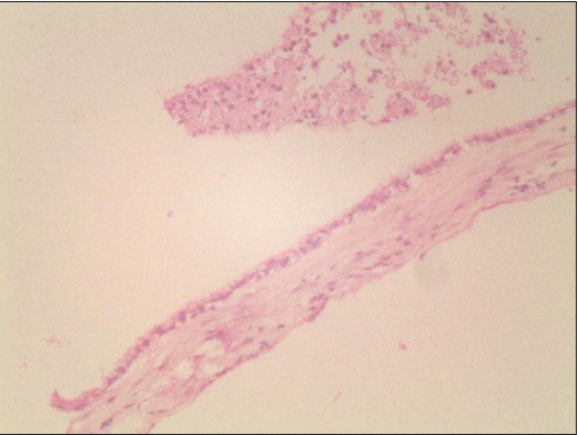 Figure 4: Pathology section showing cyst wall lined with cuboidal epithelium (200X)