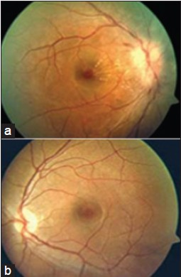Figure 1a, b: Fundus Picture on fi rst visit. Initial presentation of the right optic nerve head showed disc edema, peripapillary flame shaped hemorrhages, nerve fi ber layer attenuation, venular distention, and partial macular star. The left optic nerve head showed small cup-to-disc ratio at initial presentation. There was
