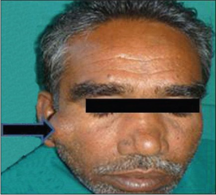 Figure 1: Clinical photograph of the periorbital swelling