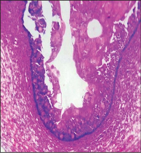 Figure 10: Histopathological picture showing cystic space lined by odontogenic epithelium and ghost cells (H and E, ×400)