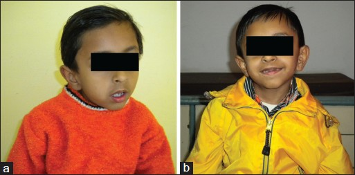 essay on torticollis Hi nat, thanks for your encouragement :] i have continued searching and found papers published overseas possibly that explored the treatment of neglected torticollis like mine through surgery.
