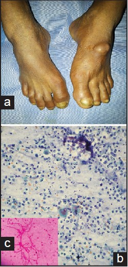 Fungal foot abscess caused by Aureobasidium pullulans