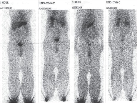 Figure 3: Lymphoscintigraphy showing aplasia of the lymphatics in both lower limbs