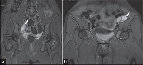 Figure 5: (a and b) Are short TI inversion recovery coronal magnetic resonance imaging obtained by Siemens Avanto 1.5 Tesla confirming normal location of right ovary and left ovary is located intra-peritoneally at the level of left iliac crest with multiple follicles suggesting normal functioning