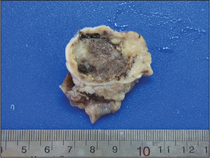 Figure 1: Cut section of ovary shows a well-defined hemorrhagic mass