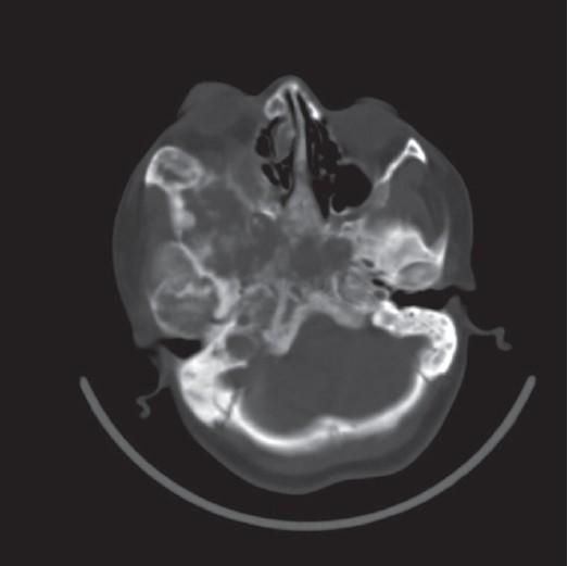 fibrous dysplasia of bone causing unilateral proptosis, Sphenoid
