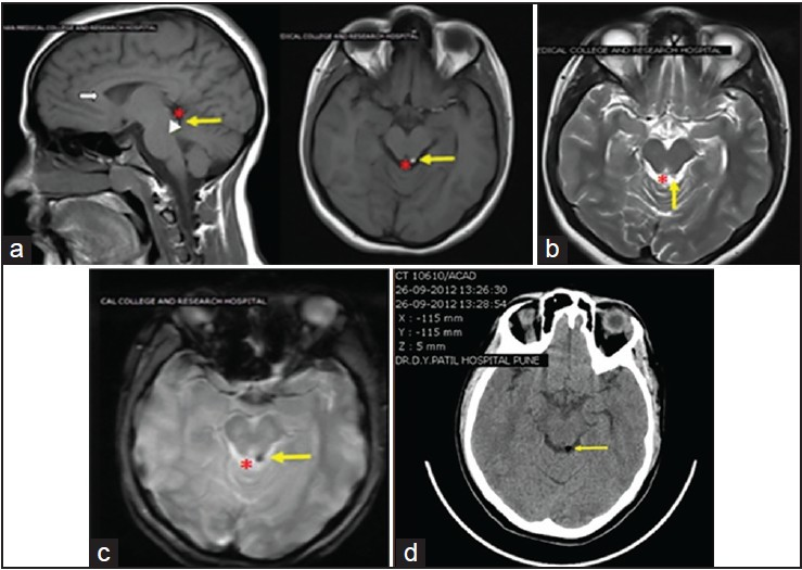 Quadrigeminal Cistern Lipoma A Rare Case Report With Review Of