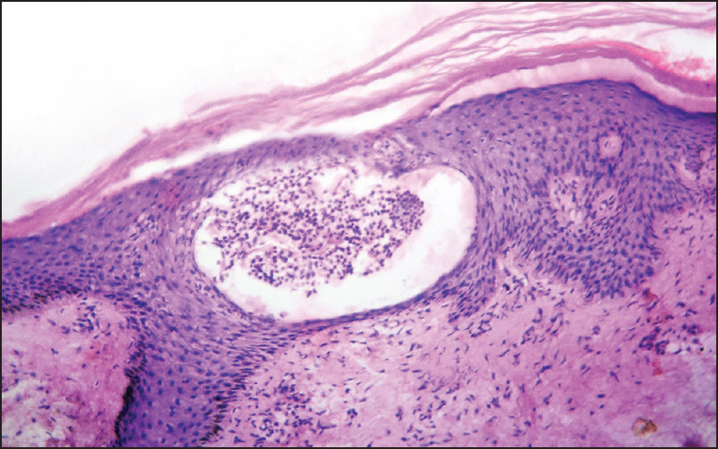 Figure 4: Photomicrograph of Psoriasis vulgaris showing kogoj pustules, acanthosis, hypogranulosis, and spongiosis (H and E, ×100)
