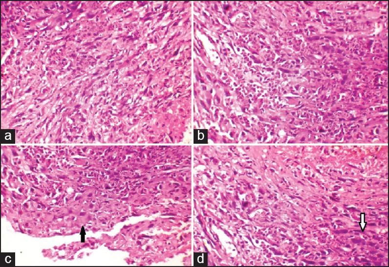 Paravertebral and epidural sarcoma with spinal cord