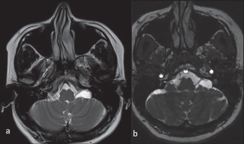 Magnetic resonance imaging of cerebellopontine angle lesions Yadav P ...