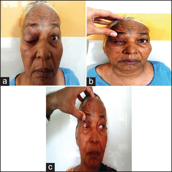 Figure 1: (a) Photograph of the patient showing complete ptosis. (b) Photograph of the patient showing conjunctival congestion and chemosis. (c) Photograph of the patient showing restriction of eye movements superiorly and medially