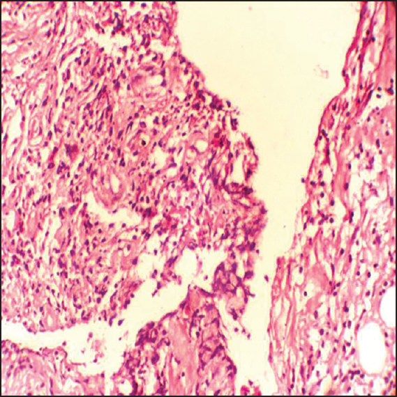 Figure 4: Photograph of histopathological slide showing fibroadipose and fibrocollagenous tissue infiltrate by mononuclear cells
