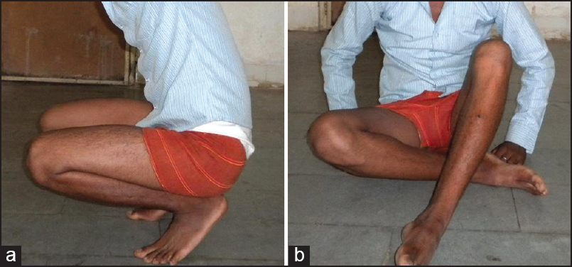 Figure 4: (a and b) Functional result of the patient; able to squat and sit cross-legged