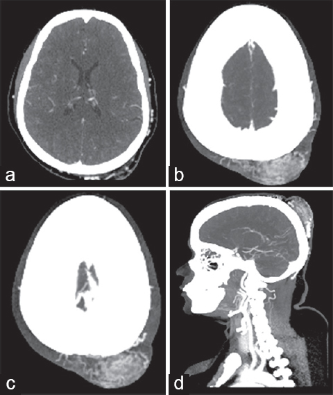 Figure 2: Axial contrast computed tomography (a), axial and sagittal maximum intensity projection images (b-d) showing entangled serpingnous vessels in the left occipital region with prominent tortuous feeders