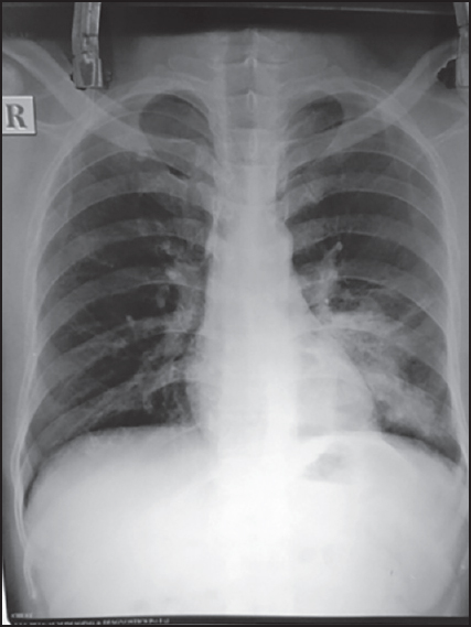 Figure 1: The chest radiograph revealed evidence of consolidation with air bronchograms in the left lower zone