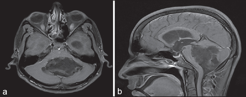 Fourth ventricle epidermoid tumor: Radiologic findings Patil