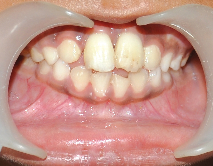 Figure 3: Intraoral photograph after 1 year showing no signs of periapical infection