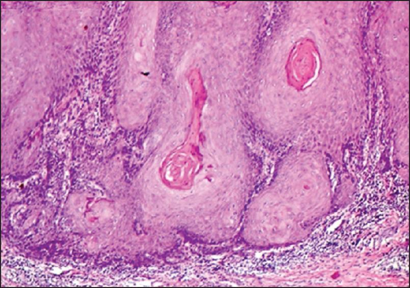 Uncommon location of verrucous carcinoma Pandiaraja J - Med J DY