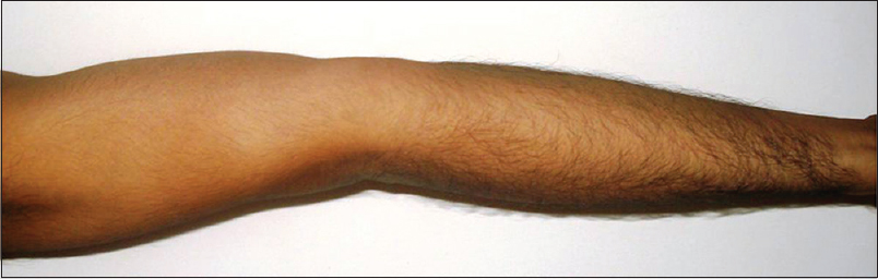 Figure 3: Active hyperextension of elbow
