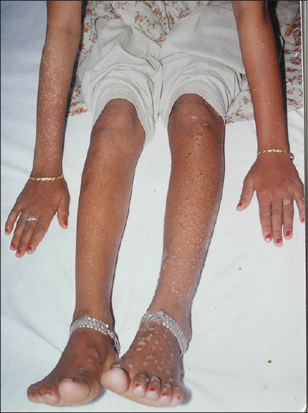 Figure 2: Hypopigmented and skin-colored flat-topped papules measuring 0.2–0.3 cm over B/L Limbs